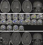 14 Difficult Gliomas