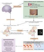 Cytogenetic/Molecular Biology: Recent Advances in the Cytogenetics and Molecular Biology of Pediatric Brain Tumors