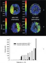 Chapter 1 – Neuropathology and Pathophysiology of Stroke