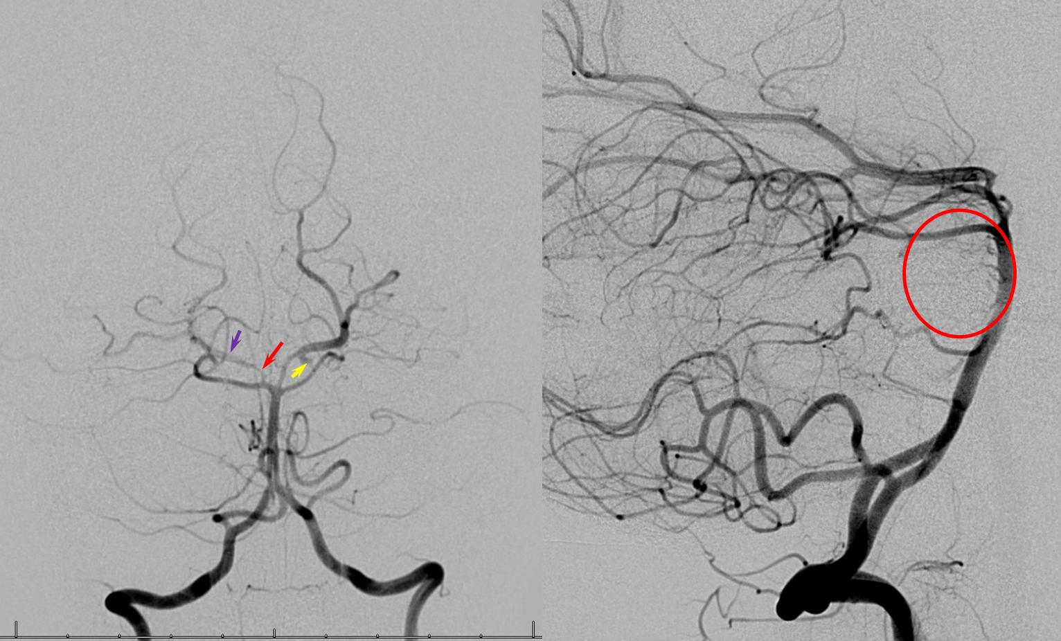 Basilar Artery