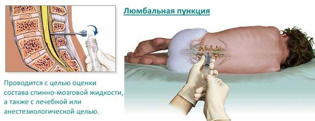 После пункции позвоночника болит сильно спина