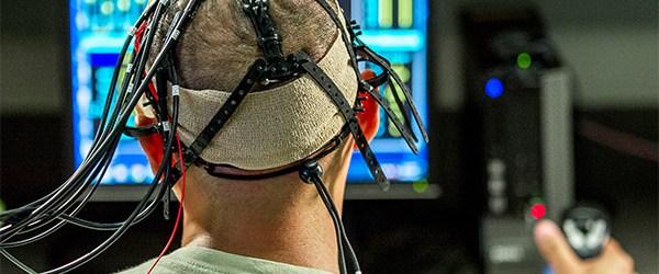 Estimulación cerebral: mejor con pericia