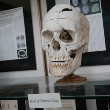 Su cráneo y la barra de hierro que lo atravesó se encuentran en el Mmuseo Warren de la Escuela de Medicina de la Universidad de Harvard.
