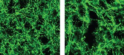 Dopamine Neurons Have a Role in Movement