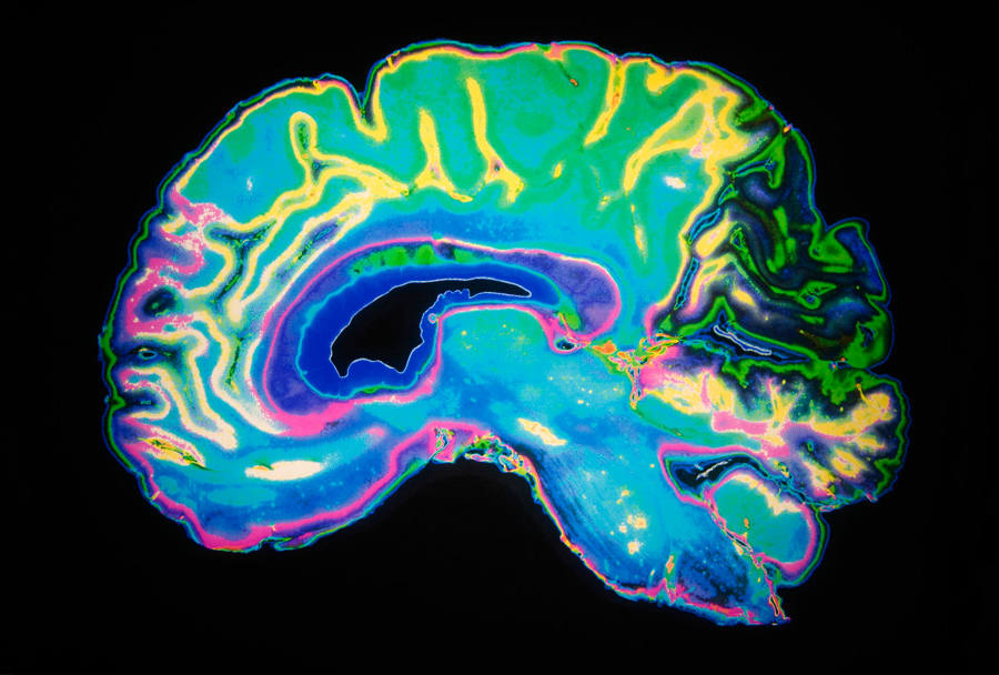 Researchers find the empathy region of the brain
