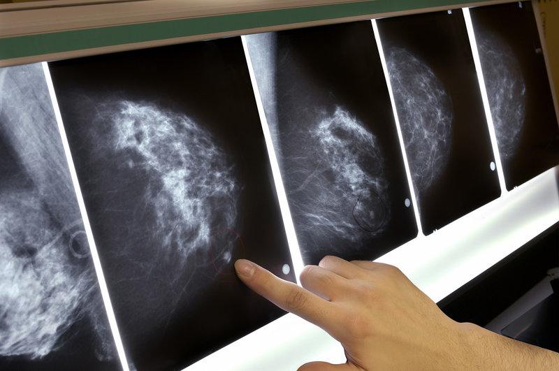 Artificial Intelligence Reads Mammograms With 99% Accuracy