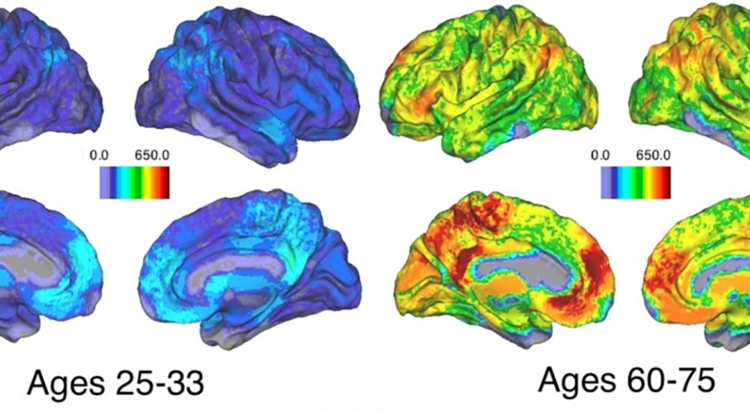 Scientists Demonstrate that as People Age, Their Brains Adopt New Strategies for Memory-Related …