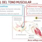¿qué es el tono muscular? hipotonía e hipertonía