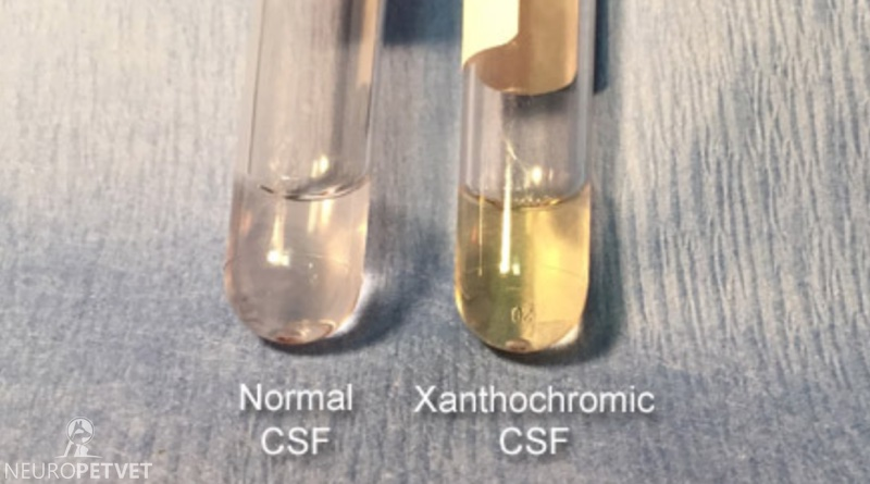 Image result for xanthochromia csf