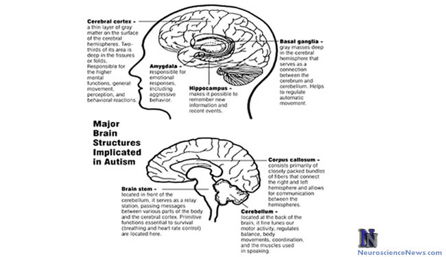 Little Evidence Supports Autism Treatment Options in Adolescents