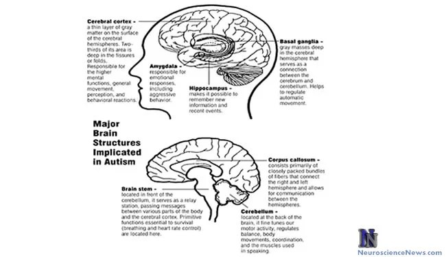 The image shows the major brain structures implicated in autism.