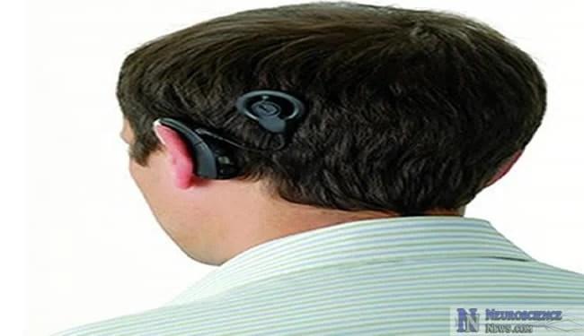 cochlear-implant-bioengineering