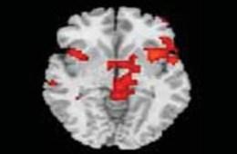 hoarding-disorder-brain-scan