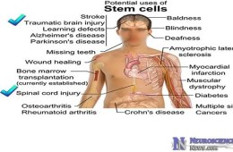 Human embryonic stem cell therapy possibilities are listed on the image of a man.