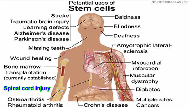 spinal-cord-stem-cell-public