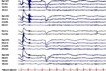 EEG trace patterns.
