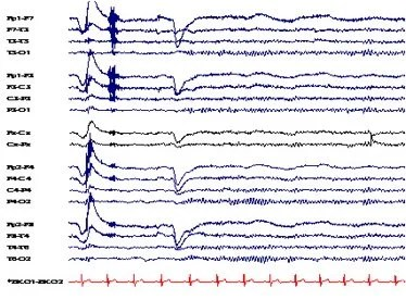 EEG trace patterns.