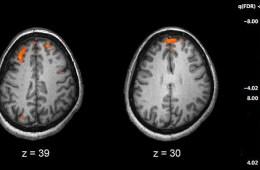Schizophrenia fMRI brain scans are shown.