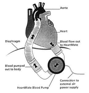 The image shows a sketch of a heart with a  left ventricular assist device (LVAD).