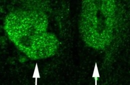 The image shows the cell nuclei in human embryonic stem cells.