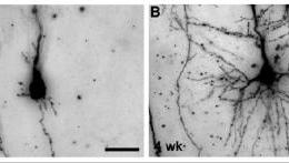 Fetal neurons are shown in two panels in this image. The caption describes well.