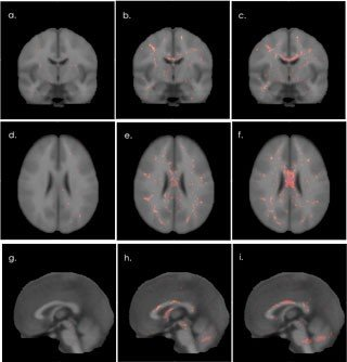 The image shows comparative brain scans of veterans with mild TBI and those without TBI.