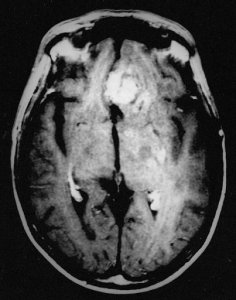 The image is a brain scan of a patient with recurrent glioblastoma.