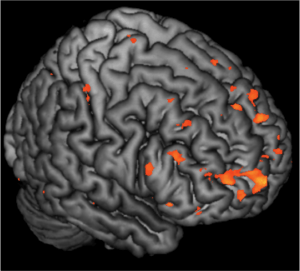 The image shows the brain activation in children with a family history of schizophrenia, who are themselves at greater risk for developing schizophrenia.