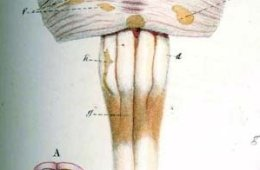 The image shows lesions on the spinal cord associated with MS.