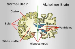 This illustration compares a normal brain to an alzheimer's brain.