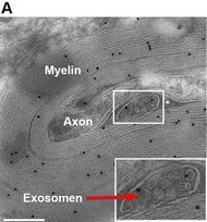 The image shows the exosomes.