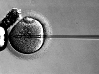 This image shows an ICSI procedure with a sperm injection into the oocyte.