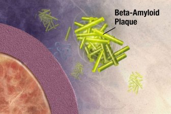 This image shows amyloid beta plaques associated with Alzheimer's disease.