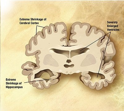 The image shows damage to the brain in an Alzheimer's patient.
