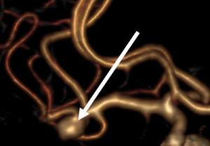This picture shows a middle cerebral artery bifurcation aneurysm.