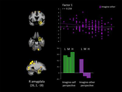 The image shows an fMRI of a psychopath's brain. The caption best describes the image.