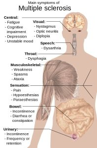 This illustration shows the main symptoms of multiple sclerosis.