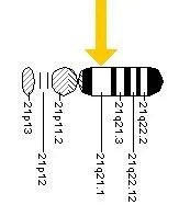The image show the location of SOD1 on chromosome 21.