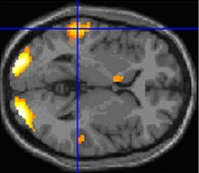 This is the MRI scan associated with the article.