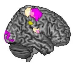 This is an MRI of the right brain hemisphere.