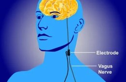 This is a diagram of an implanted vagus nerve stimulation device in a human.