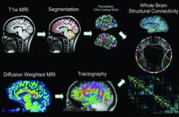 The image shows brain scans for the epilepsy patients.