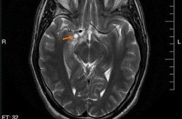 This is an MRI scan of a brain with a glioma.