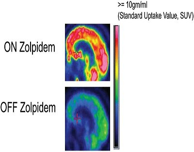 This is a PET scan image taken from the research paper.
