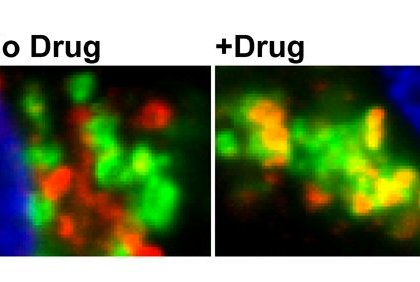 The image shows the impact of the drug on BACE.