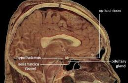 This image shows the location of the hypothalamus in the brain.
