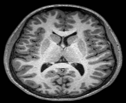 This is an MRI scan of a human brain.