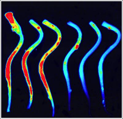 This image shows thombin in the spinal cord.