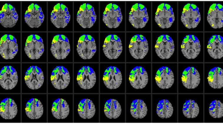 This image shows MRI scans takes from the research paper.