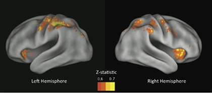 These MRI scans show the predictive regions of the brain reported in the research.